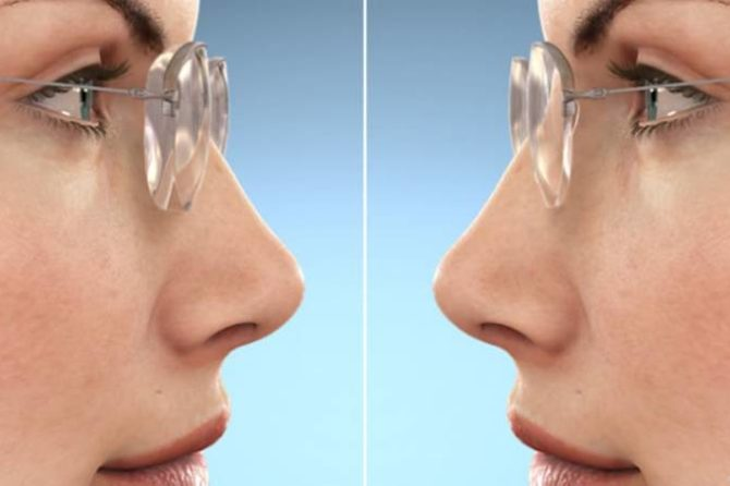 hi-index lenses
